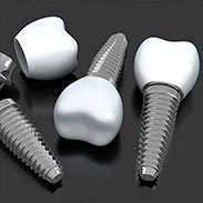 Dental Implants on Staten Island