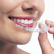 Invisalign on Staten Island