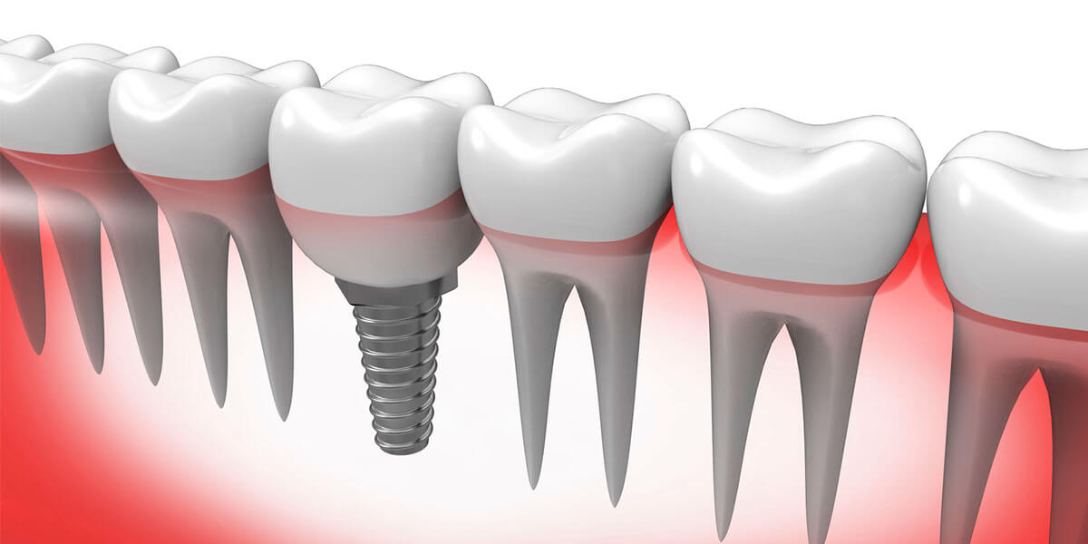 Single Dental Implants on Staten Island, NY